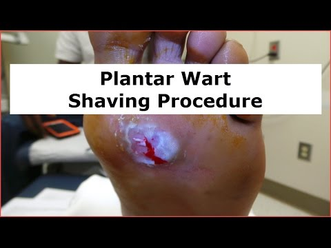 Plantar Wart Shaving Procedure