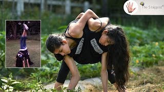 Conjoined Twins Carmen and Lupita's: 2 legs and 4 arms!~Body Bizarre! CONJOINED Part1