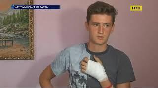 На Житомирщині підліток кинувся рятувати дівчину, яку посеред вулиці бив агресивний чоловік