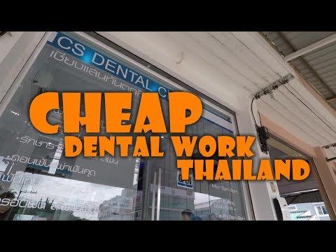 Cheap Dental Work Thailand