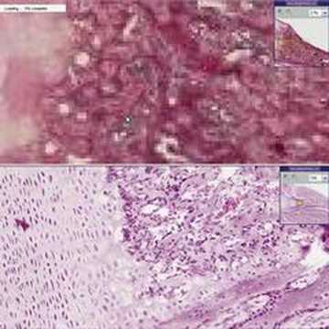 Histopathology Bone --Rickets