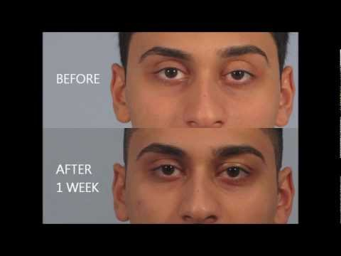 Droopy Eyelid Surgery Review - Dr. Brett Kotlus - YouTube