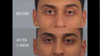 Droopy Eyelid Surgery Review - Dr. Brett Kotlus