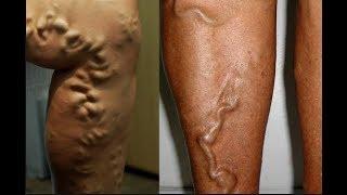 Naturalmente das nódulo de pernas tratamento varizes no