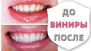 Виниры. Все этапы установки и изготовления | Зубы до и после установки виниров | Дентал ТВ 12+