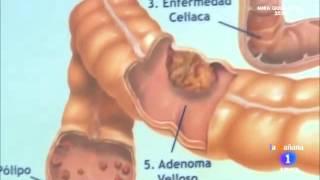 Anatomía del colon y aparición de pólipos