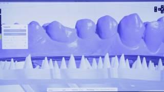 Обзор Formlabs Form 2 - многофункциональный 3D принтер для стоматологов | Formlabs (США)