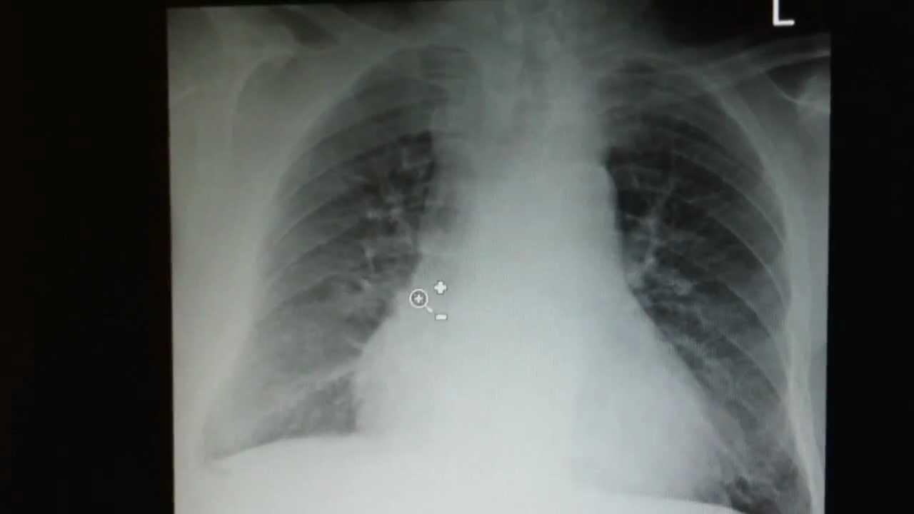 Laparoscopic Gallbladder Surgery  Medfusion