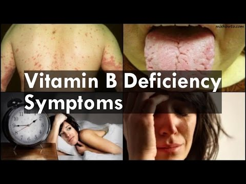 Vitamin B Deficiency Symptoms