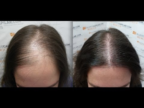2102-fu's.-hair-transplant-by-fue-technique.-female-alopecia.-injertocapilar.com.-758/2012