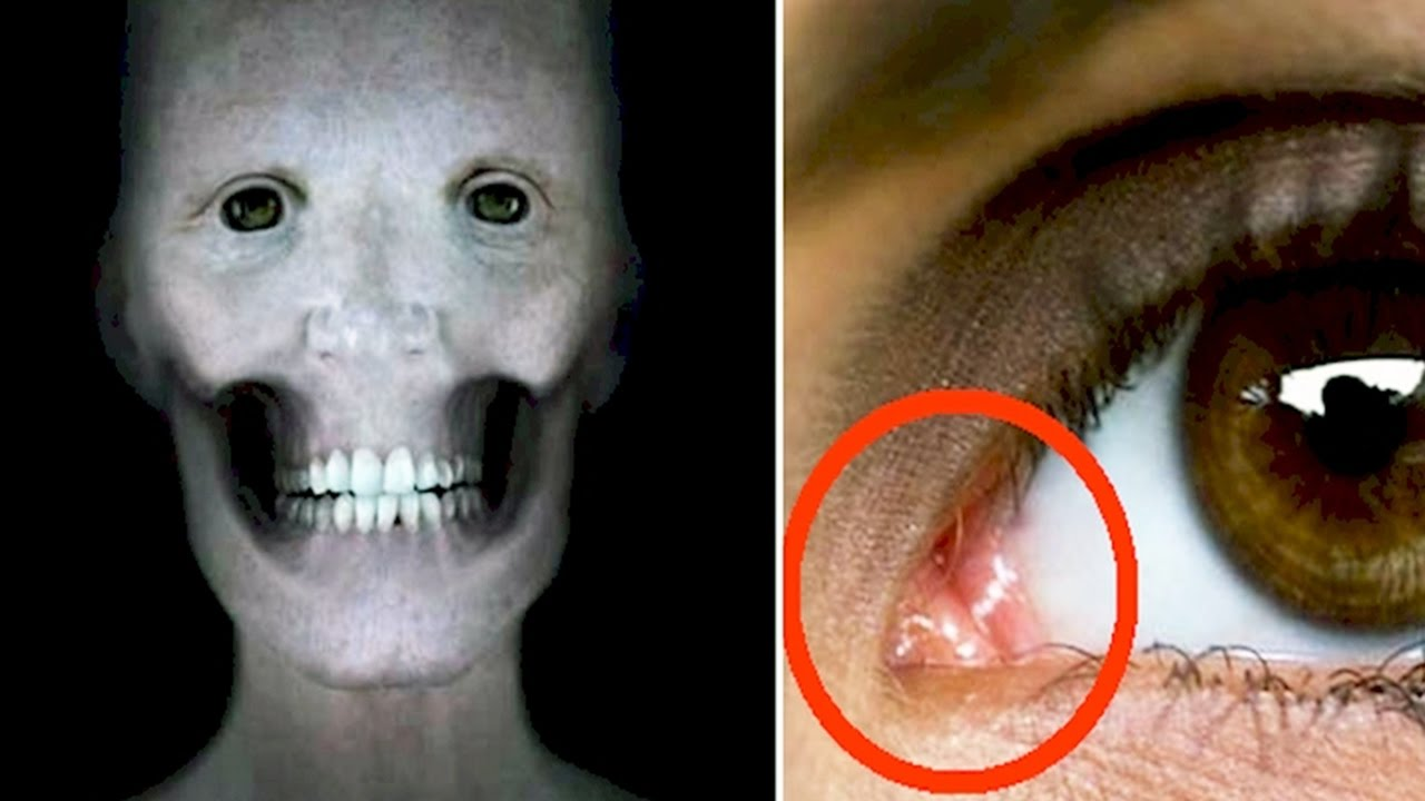 10 Creepy Things Your Body Does - YouTube Creepy Pictures