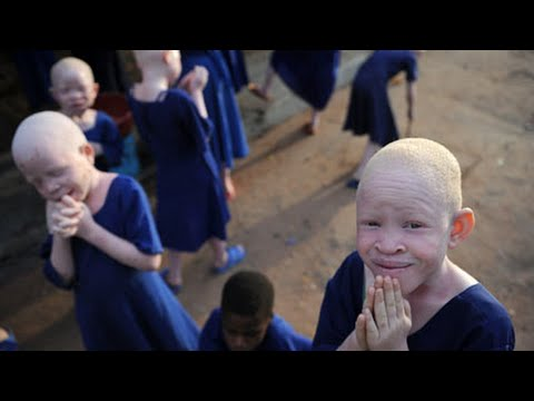 Albino People Hunted In Tanzania