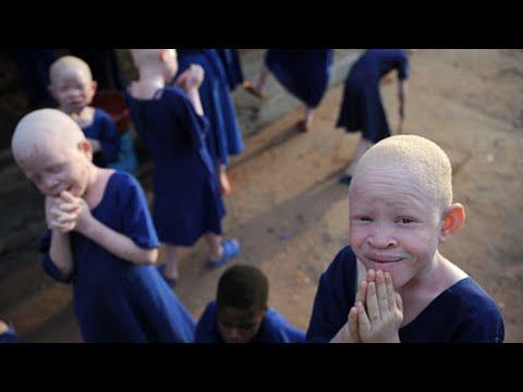 Albino People Hunted In Tanzania - YouTube