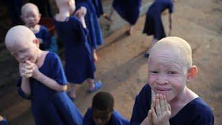 Albino People Hunted In Tanzania