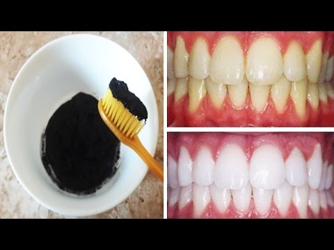 ضعيها على الأسنان كل يوم واقسم بالله النتيجة سوف تبهرك أسنان بيضاء كانك قمت بعملية تبييض الأسنان