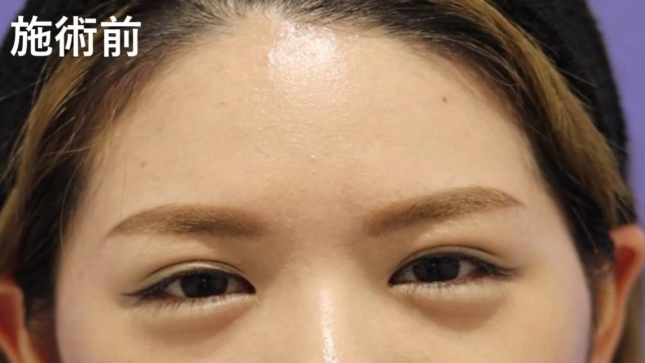 ボトックス 眉間