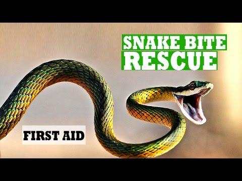 First Aid Training Module Snake Bite Management by Jacob Vijay kumar - RLSS  (India)