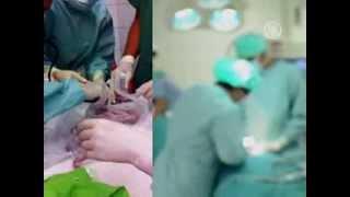 У женщины с мёртвым мозгом родился ребенок (новости)