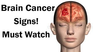 brain cancer signs | brain tumor causes | US Health TV