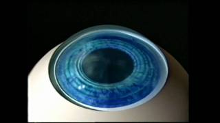 Kevin Niksarli, MD - About LASIK Eye Surgery in New York City