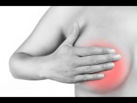 Những dấu hiệu không ngờ của bệnh ung thư vú