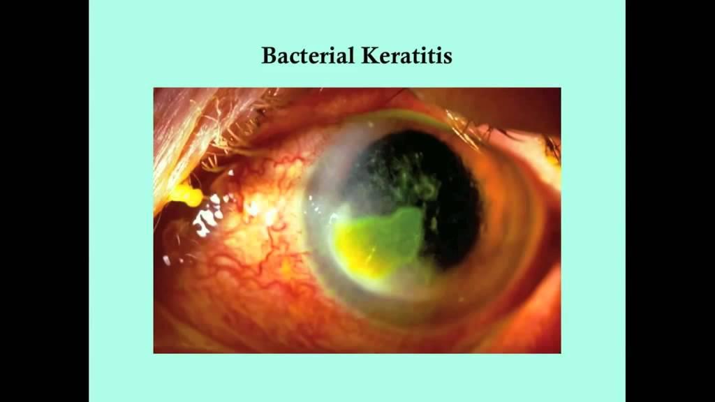 keratitis szemészet parietális látás