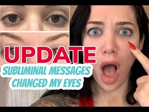 biokinesis-eye-color-change-results-update!-(2.5-weeks-progress)