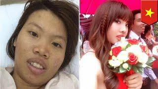 Wanita operasi plastik $14,000 karena sering diejek - TomoNews