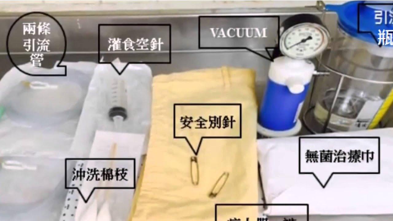 鼻胃管減壓護理(N-G Decompression) - YouTube