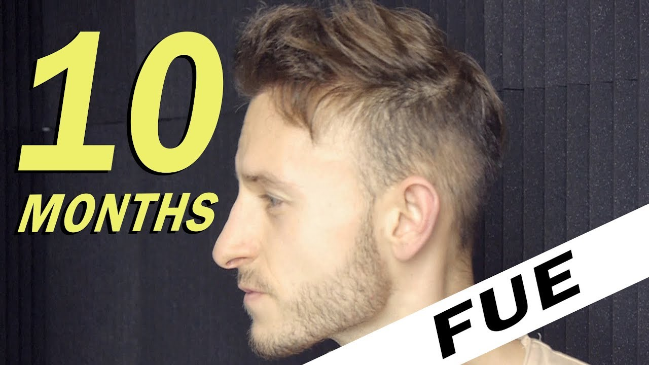 Fue Hair Transplant 10 Months Post Op Istanbul Turkey Youtube