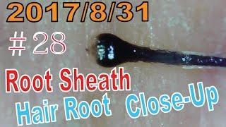 Hair Root / Root Sheath Close Up #28【Plucking Root Sheath】