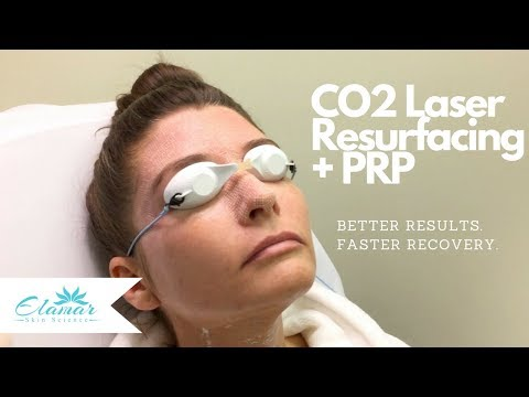 CO2 Laser Skin Resurfacing + PRP | Better Results and Faster Recovery