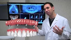 All on 4 Dental Implants Explained