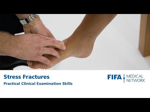 Hop test | Clinical Examination Stress Fractures