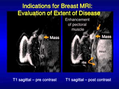 Images Of Cancerous Mammograms
