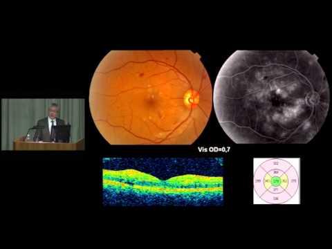 Диабетическая ретинопатия   причины, симптомы и лечение.  Сайт WWW.PROGLAZA.RU