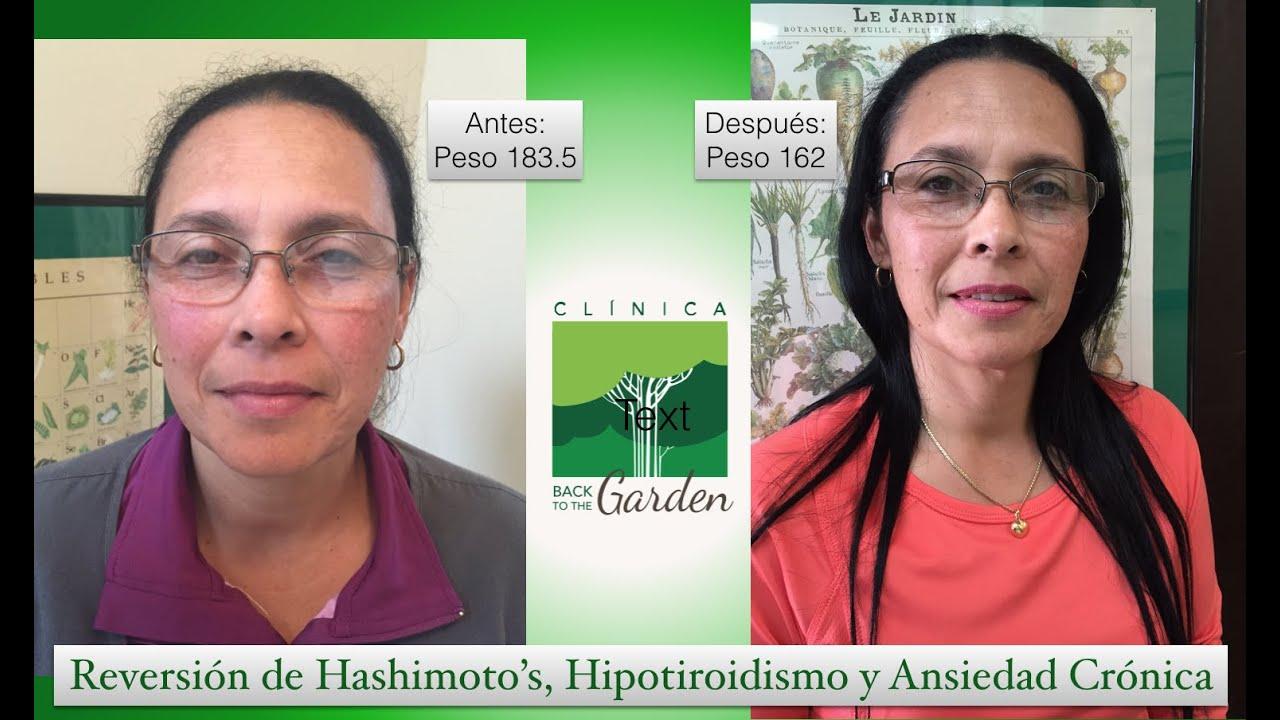Reversión de Hashimoto's, Hipotiroidismo y Ansiedad Crónica