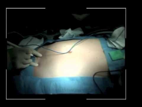 Minimalist surgery: single port access for Crohns disease