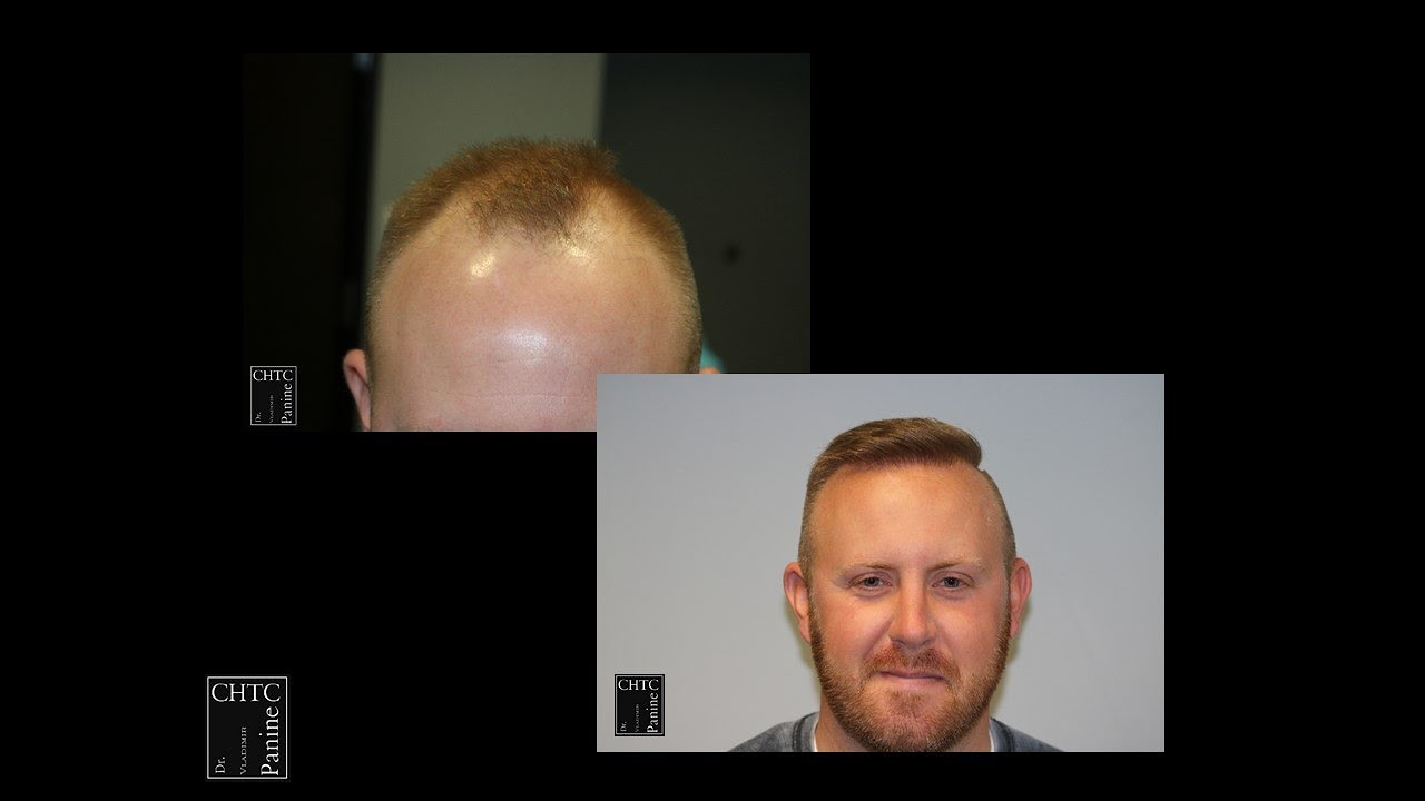 PANINE MD   Chicago Hair Transplant Clinic - FUE Hair ...