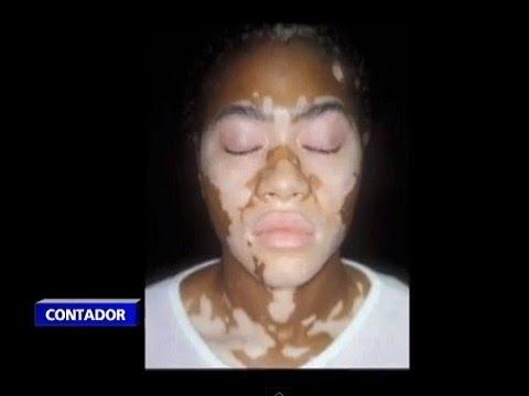 De que aparecen la pigmentación sobre la persona
