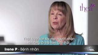 patient testimonials forever young bbl sciton muxed