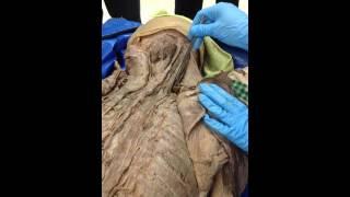 Mashpedia top videos about iliocostalis