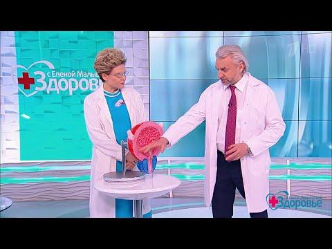 Гиперактивный мочевой пузырь. Здоровье. 29.03.2020