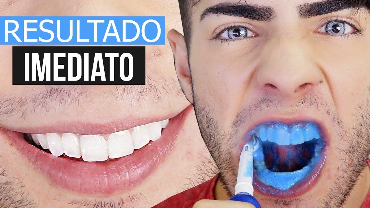 Clareie Seus Dentes Na Hora Uma Rapidinha Youtube