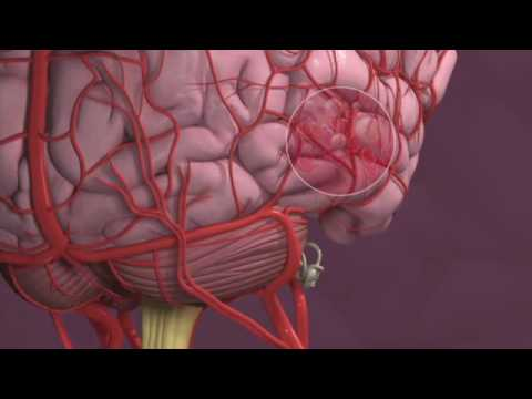 Migraines and Vertigo - Mayo Clinic