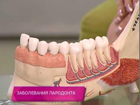 Заболевания пародонта. Школа здоровья. GuberniaTV