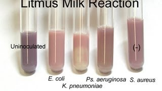 Litmus Milk Test - Amrita University