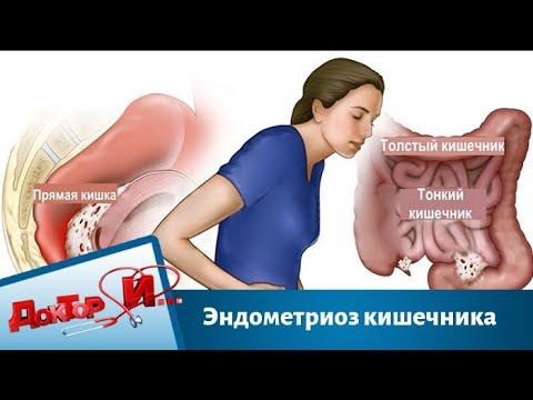 Эндометриоз кишечника   Доктор И