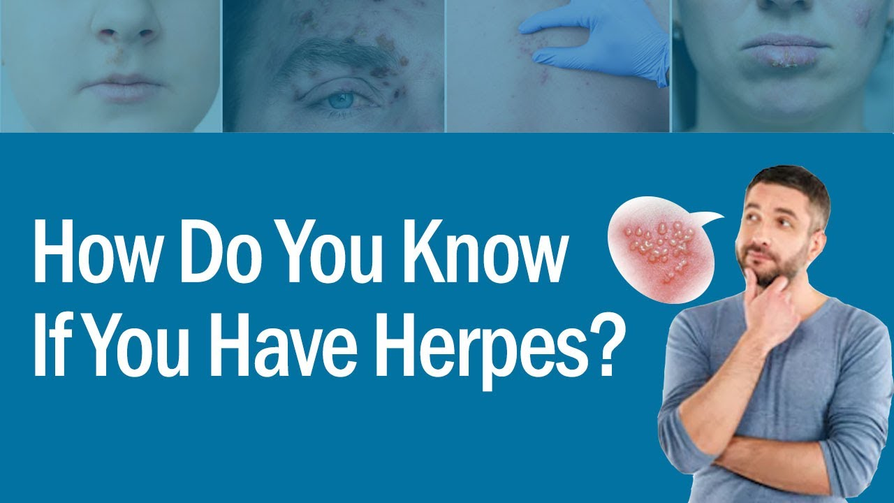 How Do You Know If You Have Herpes | Check Your Herpes Symptoms| Natural Herpes Treatment