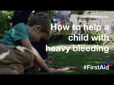 Children First Aid: Bleeding